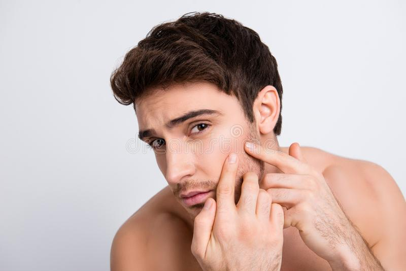 Close up portrait of handsome unhappy sad upset brunette brown-haired with stubble young guy trying to squeeze out pimple rash wi royalty free stock images