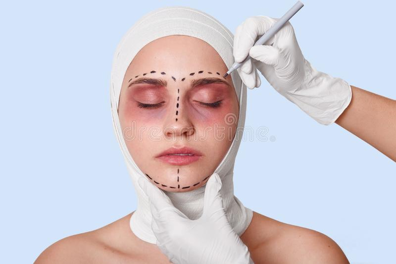 Close up portrait of young woman with correction lines before cosmetic surgery, wants to be beautiful, model posing with closed stock images