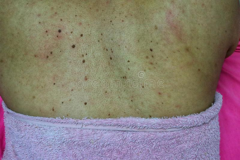 Close-up of the skin on the back  Of women with skin diseases, allergies, rash, redness, itching, skin disease concepts. Asia stock photo