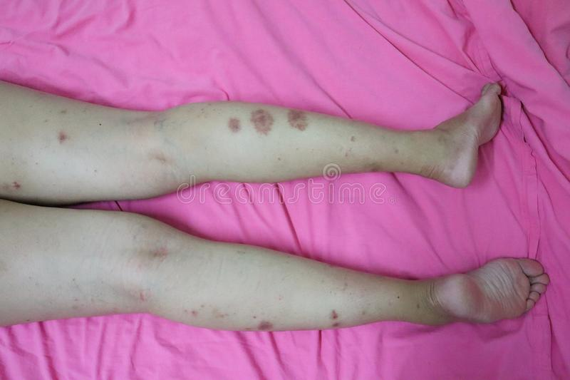 Close-up of skin on legs  Of women with skin diseases, allergies, rash, redness, itching, skin disease concepts. Body stock photo