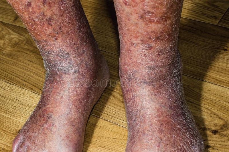 Close-up of skin with varicose veins royalty free stock photo