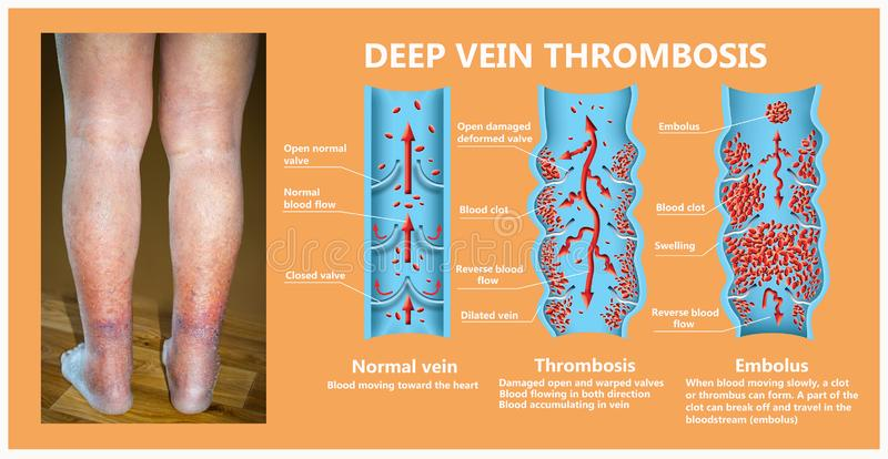 Close-up of skin with varicose veins stock illustration