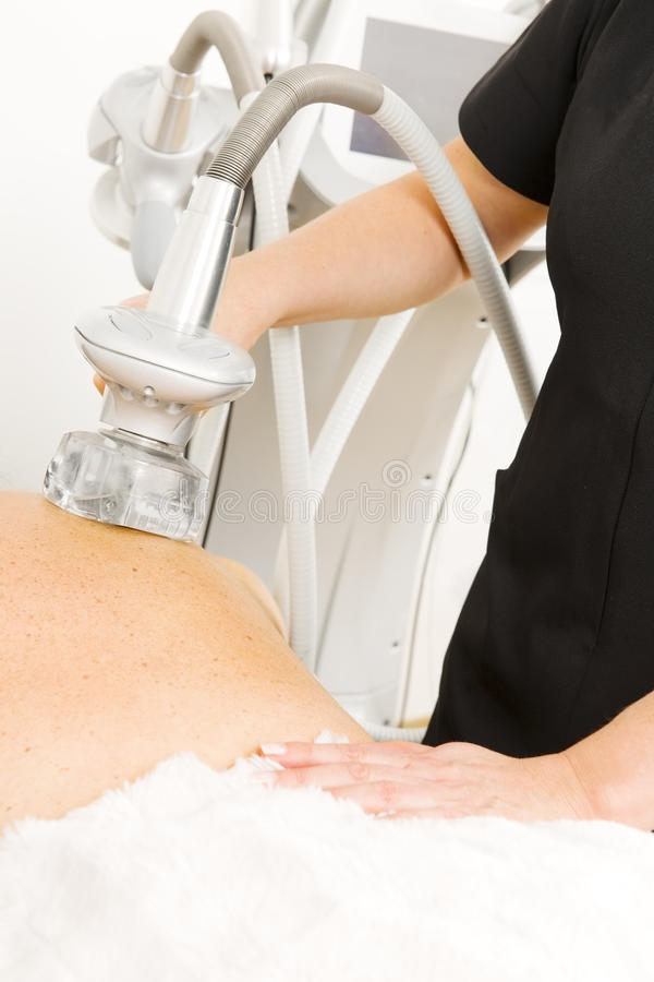 Close-up of slimming vacuum massage treatment at clinic royalty free stock image