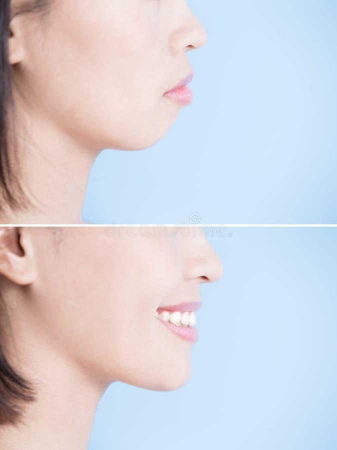 Close up of surgery woman royalty free stock photos