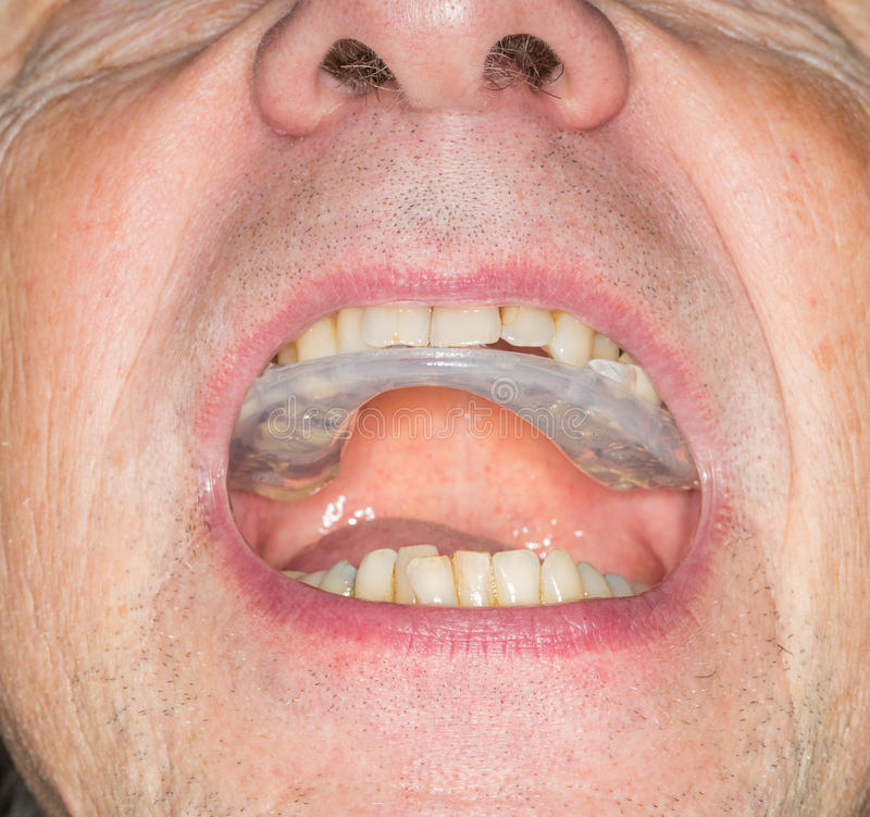 Close up of teeth guard in senior mouth. Macro close up of a plastic teethguard to stop wear due to teeth grinding at night. Often caused by tension and worry royalty free stock image