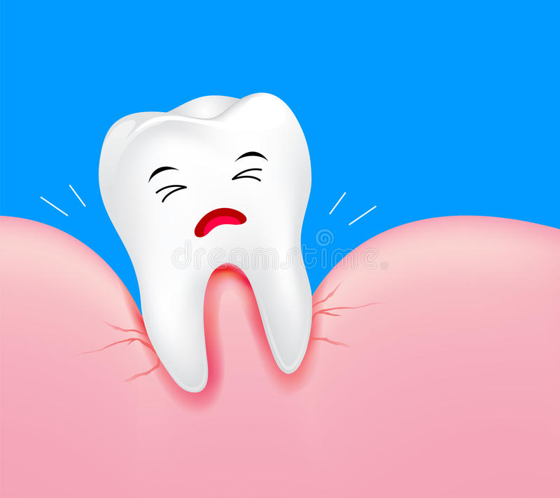 Close up of tooth character with gum problems. stock illustration