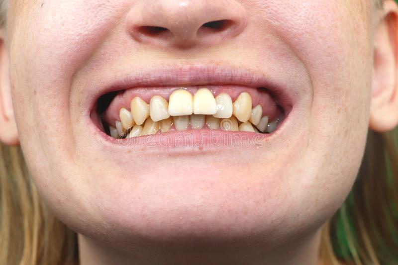 Close-up of unsuccessfully implanted dental implants royalty free stock photos