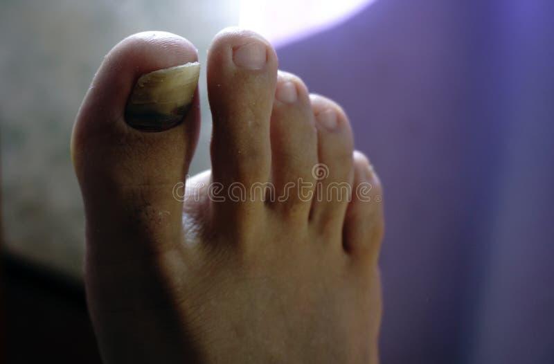 Close-up van een voet met artritis, beschadigde spijkers wegens paddestoel en atleten` s voet royalty-vrije stock foto's