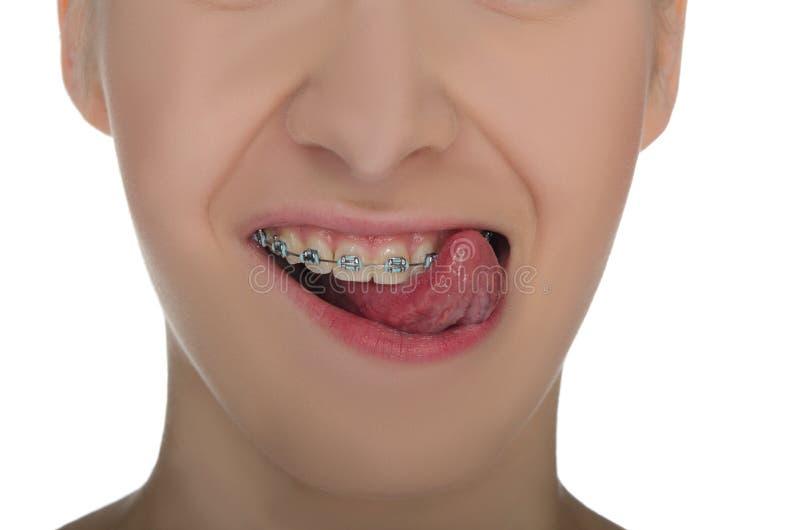 Close-up van het glimlachen van mond met steunen stock fotografie