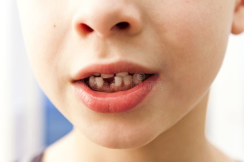 Close-up van jongen het glimlachen met ontbrekende voormelktand over licht stock foto's
