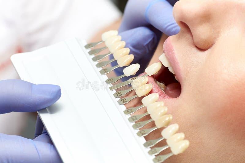 Close-up van kleur aanpassingsgebitten in de tandkliniek stock afbeelding