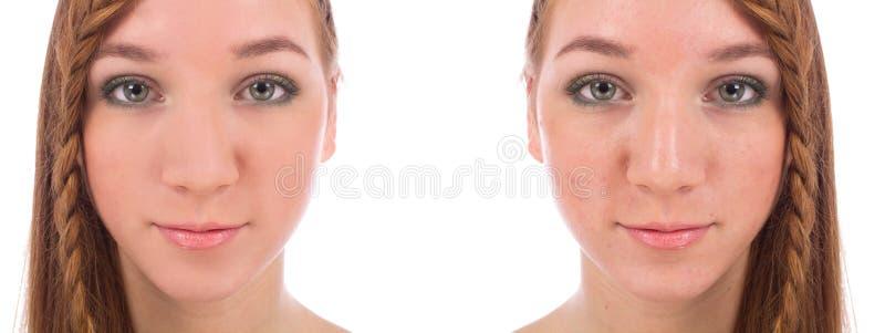 Close-up van tienergezicht met en zonder acne royalty-vrije stock afbeelding