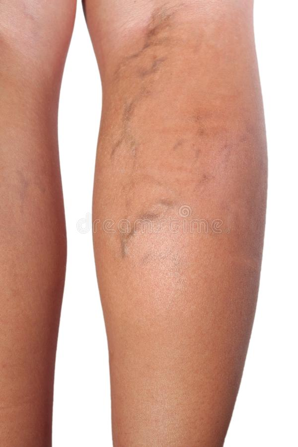 Close up of varicose veins royalty free stock photos