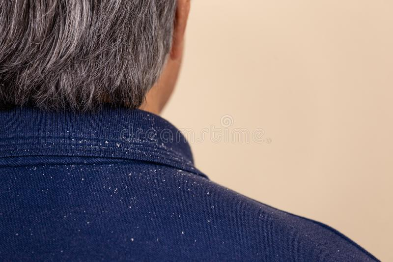 Close-up view of a man who has a lot of dandruff from his hair on his shirt and shoulders royalty free stock photography