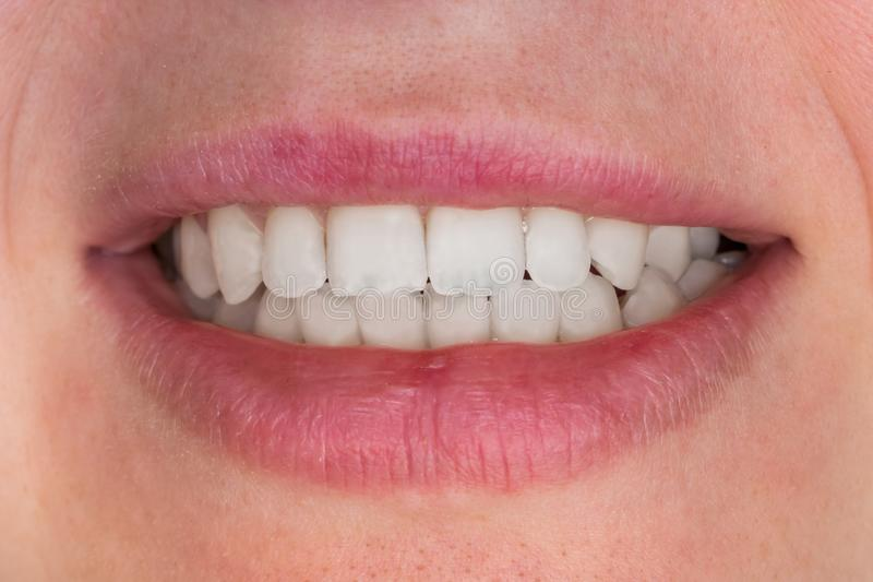 Close-up view of mouth with white teeth. Close-up view of female mouth with white teeth royalty free stock photo