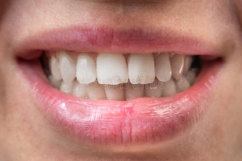 Close-up view of mouth with white teeth. Close-up view of female mouth with white teeth stock photo