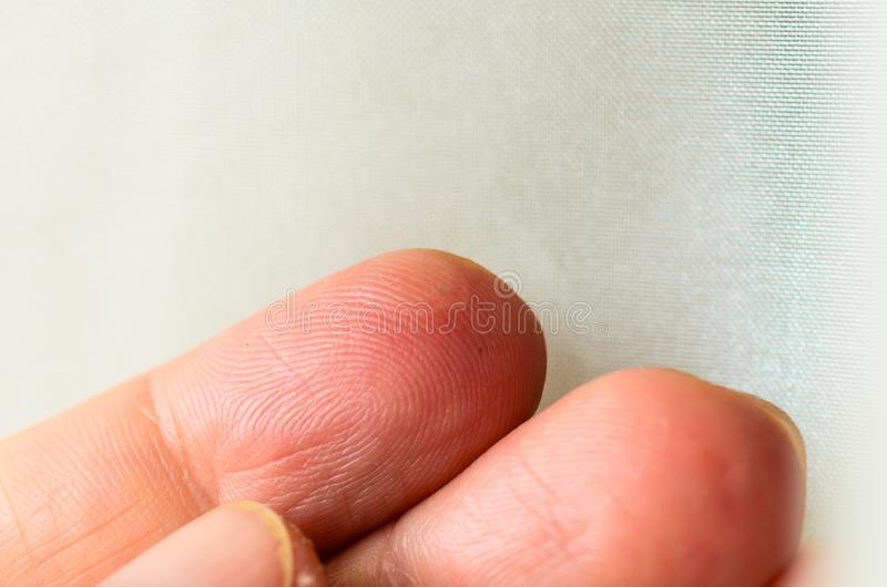 Close up wet callus or blister on the hand finger, healthcare and medical concept royalty free stock photography