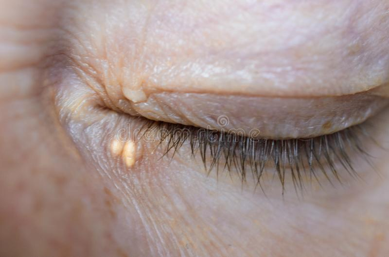 Close up of woman eyes with Xanthelasma on the eyelids. Hypercholesterolemia, high cholesterol royalty free stock photography