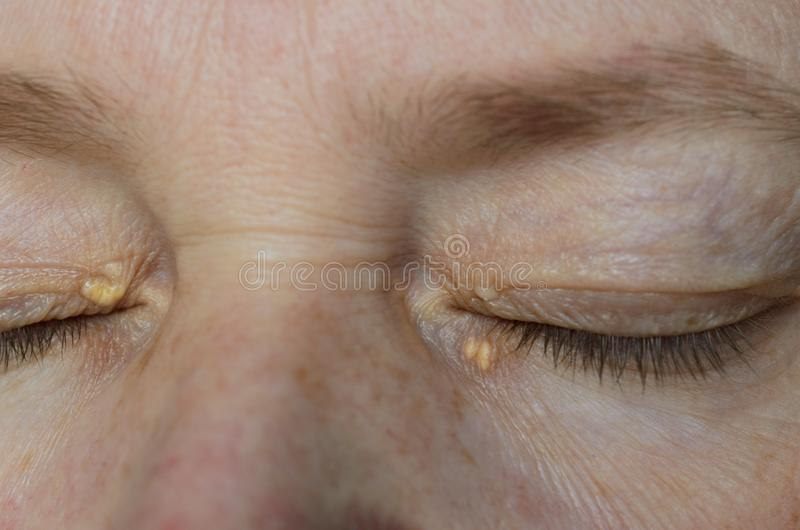 Close up of woman eyes with Xanthelasma on the eyelids. Hypercholesterolemia, high cholesterol royalty free stock photos