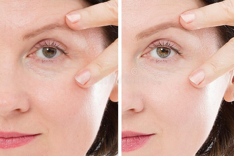 Close up woman face before after lifting injection. Middle age lady before-after wrinkled skin, eye bags, nasolabial folds. Face stock images