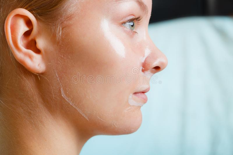 Close up woman in facial peel off mask. Close up young woman in facial peel off mask. Peeling. Beauty and skin care. Side view stock images