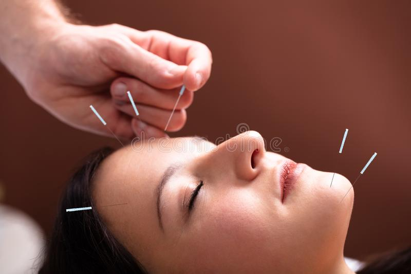 6 716 Acupuncture Photos Free Royalty Free Stock Photos From Dreamstime