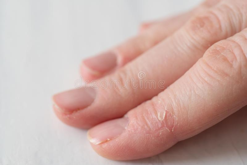 Broken Skin on Fingers. Close Up of a Woman`s Hand with Dry Broken Skin on Fingers royalty free stock images