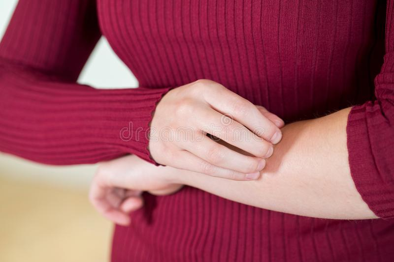 Close Up Of Woman With Skin Complaint Scratching Arm stock photography