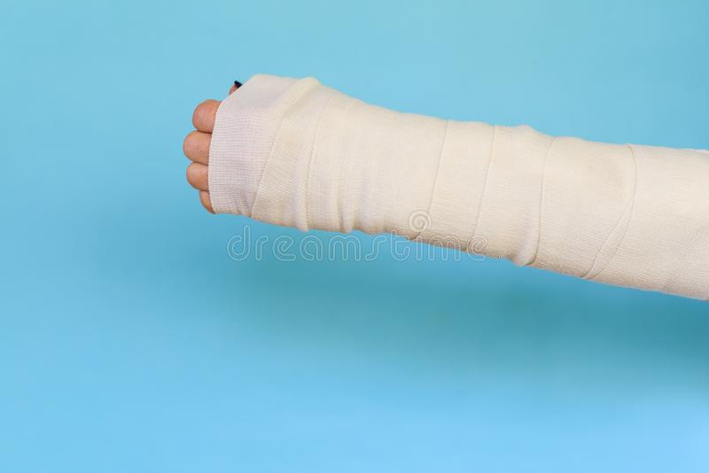 Woman with broken arm bone in cast, plastered hand on blue background. stock image