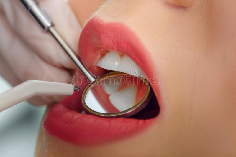 Close-up of young female having her teeth treats stock images
