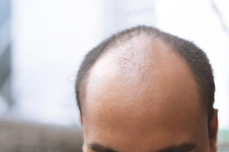 Close up young man concerned with serious hair loss. bald head thin and scalp and broken hair. concept healthcare. royalty free stock photography