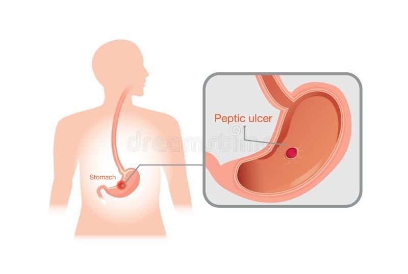 Close-upbeeld van maagzweer vector illustratie