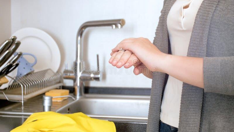 Close-upfoto van vrouwelijke handen met droge huid na het wassen van schotels royalty-vrije stock foto