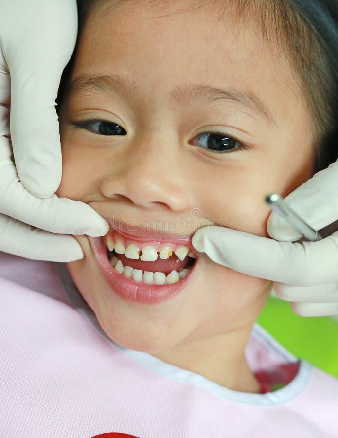 Close-upmeisje tijdens tandextractie Kind met gebroken en rotte tanden royalty-vrije stock afbeelding