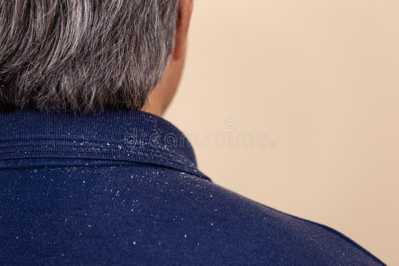 Close-upmening van een mens die heel wat hoofdroos van zijn haar op zijn overhemd en schouders heeft royalty-vrije stock fotografie