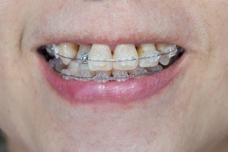 Close-upmond van bochtige tanden met steunen royalty-vrije stock fotografie