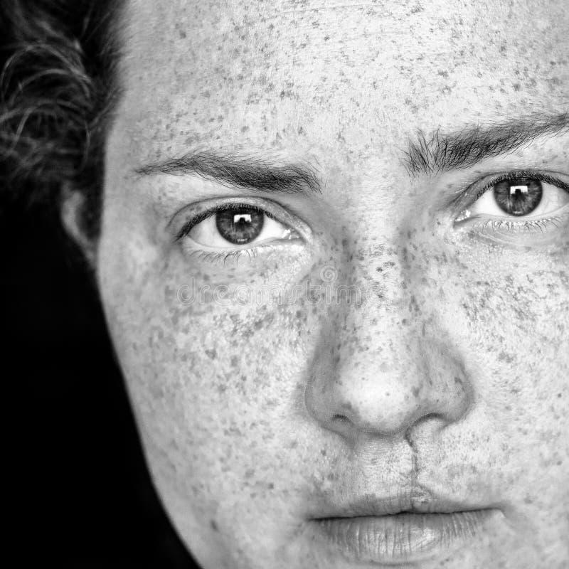 Close-upportret van Kaukasische Vrouw met Sproeten en Gespleten Lip die direct Camera bekijken Het beeld is in zwart-wit stock afbeelding