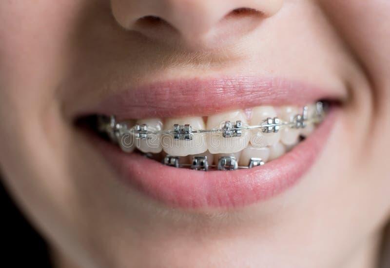 Close-upschot van tanden met steunen Vrouwelijke patiënt met metaalsteunen op het tandkantoor Orthodontische behandeling stock foto's