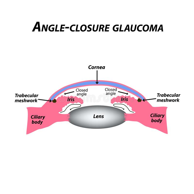 Closed angle glaucoma. A common type of glaucoma. The anatomical structure of the eye. Infographics. Vector illustration royalty free illustration