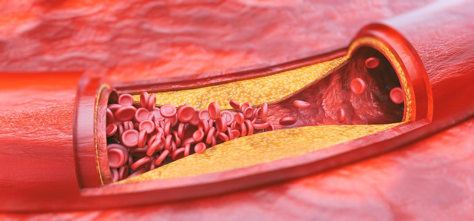 Closeup of a atherosclerosis- 3D rendering vector illustration
