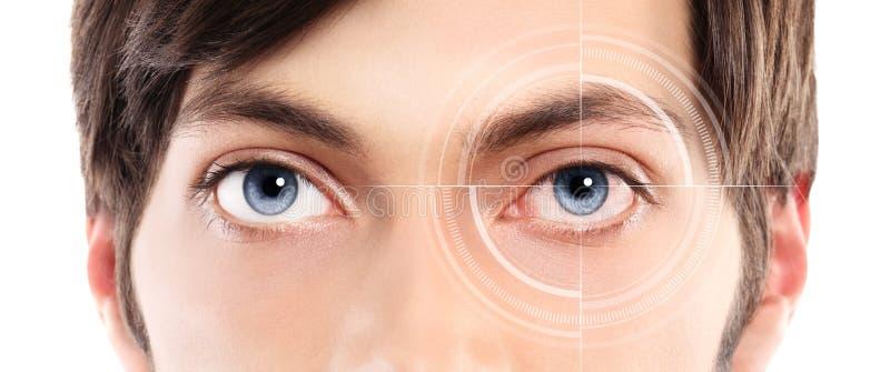 Closeup av blåa ögon från ung ett rött och irriterat öga för man med arkivfoto