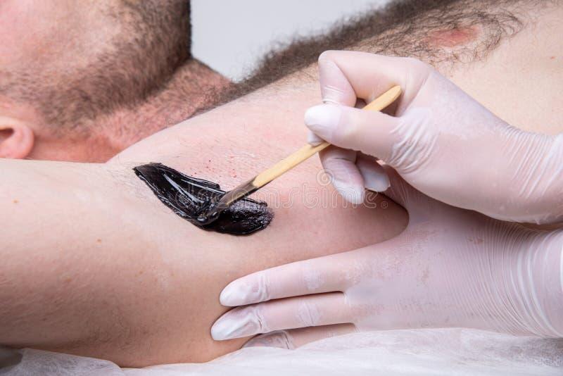 Closeup av den manliga armhålan under depilationprocessen Yrkesmässig ledar- shugaring applicerar vaxet på huden med en träpinne arkivbilder