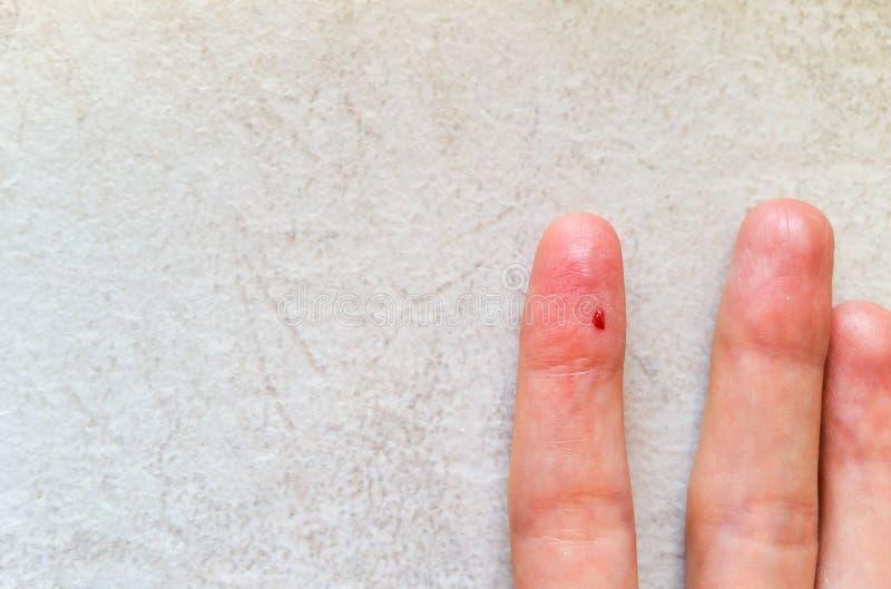 Closeup av det kvinnliga fingret med bloddroppe för blodprovning arkivfoto