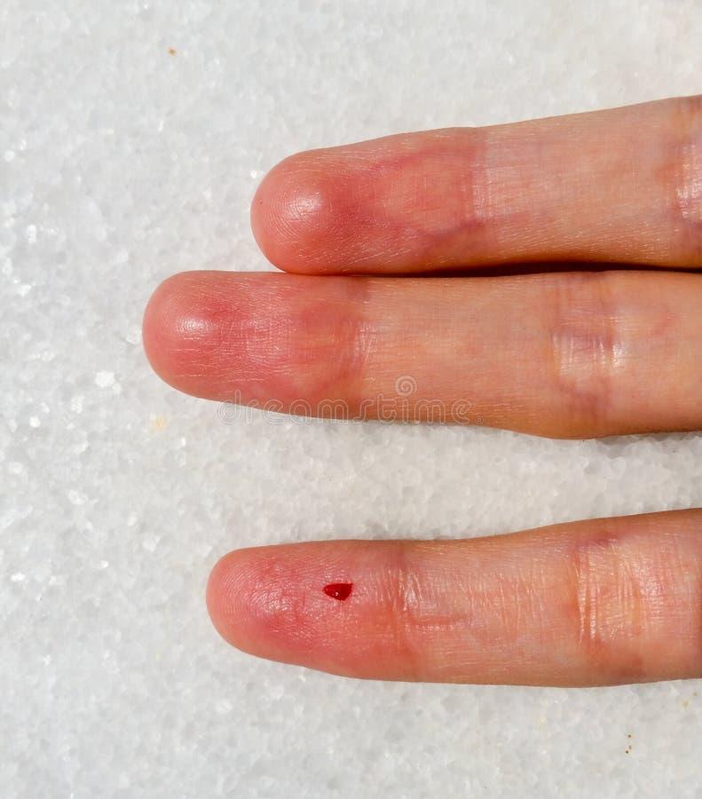 Closeup av det kvinnliga fingret med bloddroppe för blodprovning royaltyfria foton