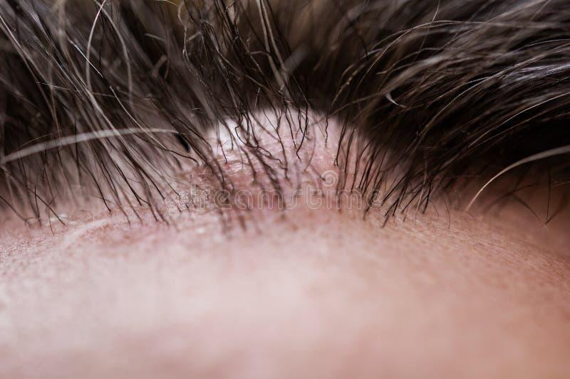 Closeup av ett manligt huvud med en atheroma arkivbilder