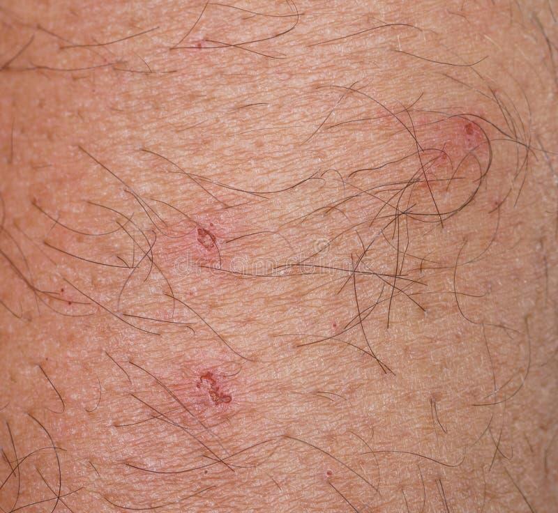 Closeup av fläcken med sårskorpan över caucasian hud royaltyfri foto