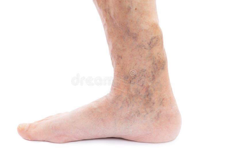 Closeup av foten och benet med åderbråcks royaltyfri foto