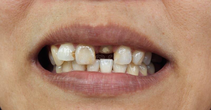 Closeup of bad teeth royalty free stock images