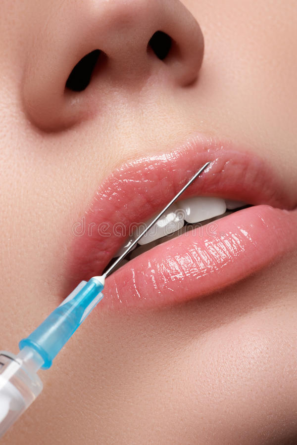 Closeup of beautiful woman gets injection in her lips. Full lips. Beautiful face and the syringe (plastic surgery and cosmetic inj royalty free stock photos