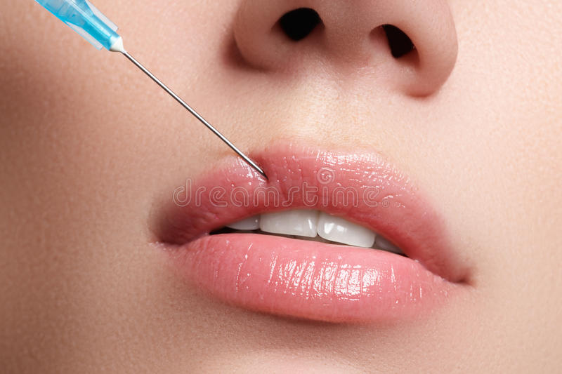 Closeup of beautiful woman gets injection in her lips. Full lips. Beautiful face and the syringe (plastic surgery and cosmetic inj stock photography